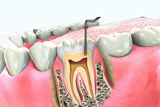 Busting the Myth Surrounding Root Canal